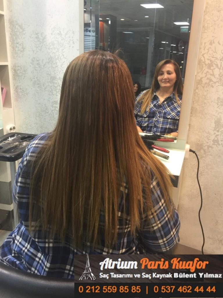 saç kaynak öncesi ve sonrası 186