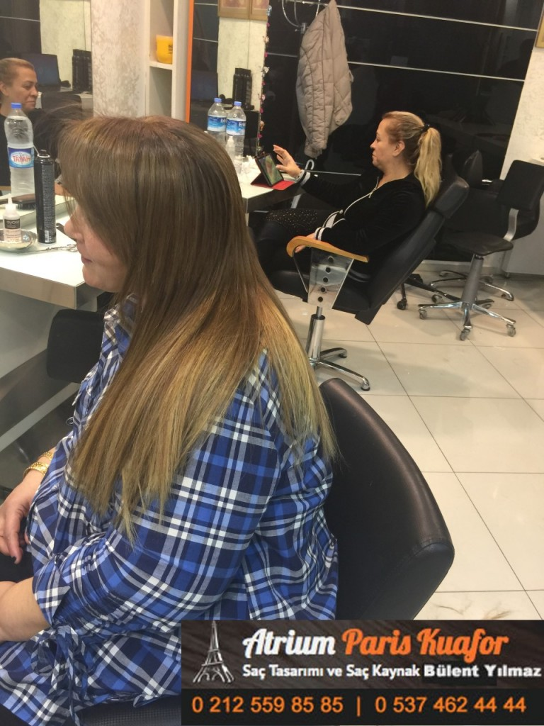 saç kaynak öncesi ve sonrası 187