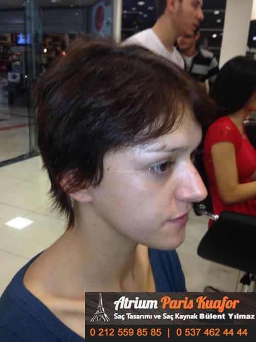 saç kaynak öncesi ve sonrası 19