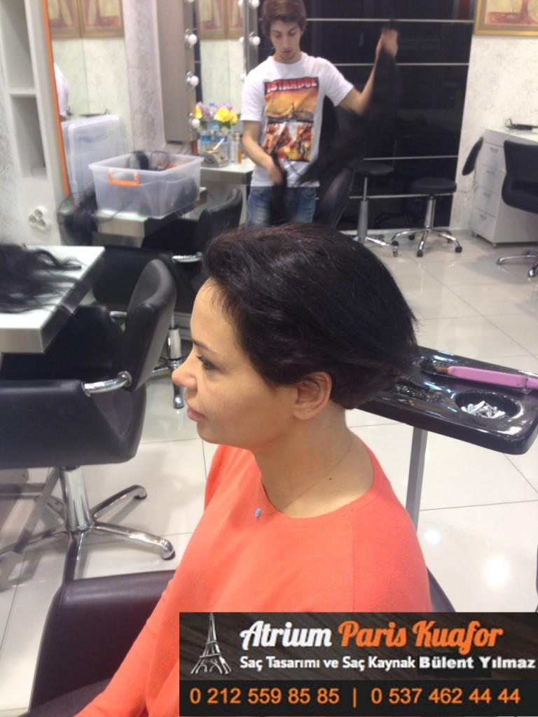 saç kaynak öncesi ve sonrası 190