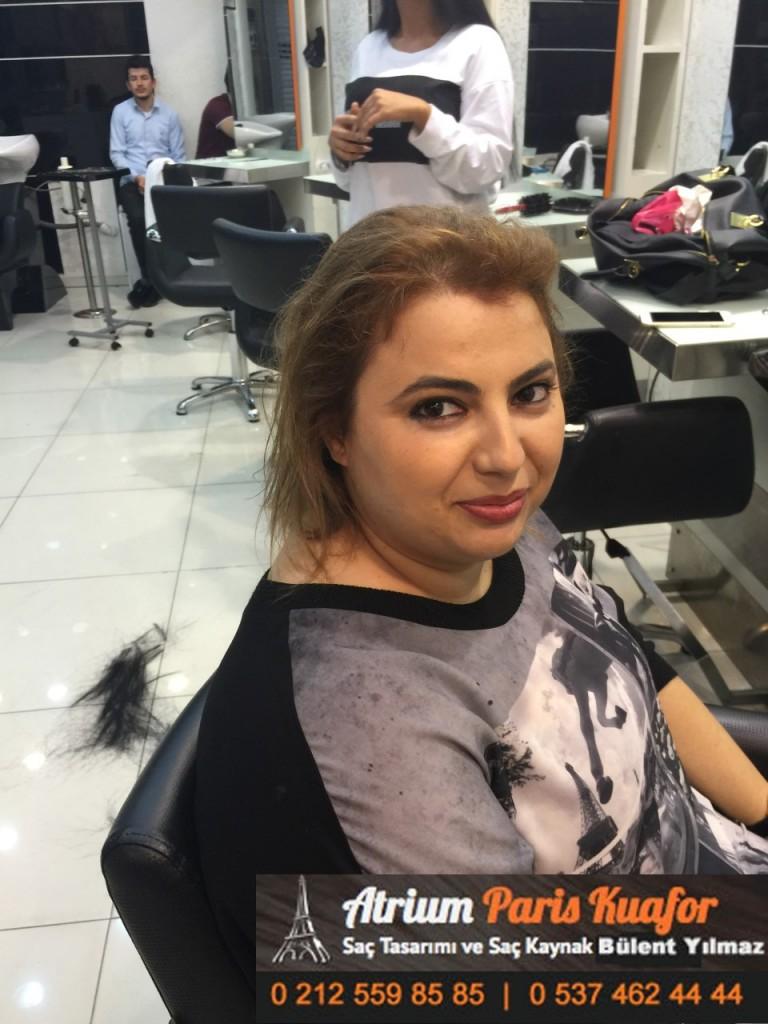 saç kaynak öncesi ve sonrası 195
