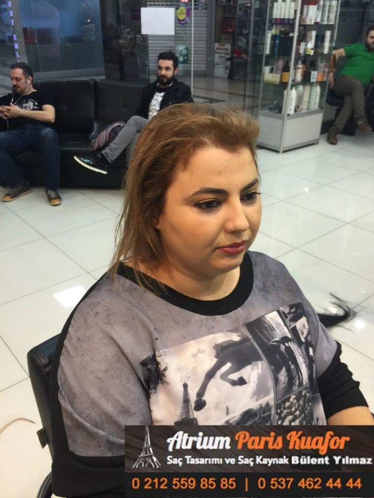 saç kaynak öncesi ve sonrası 196