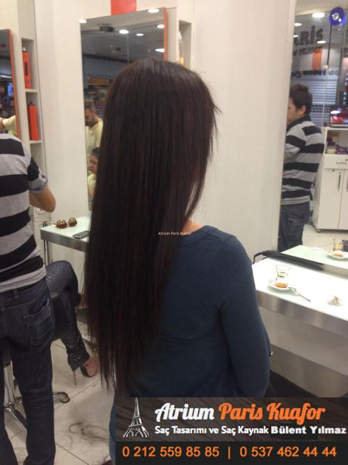 saç kaynak öncesi ve sonrası 20