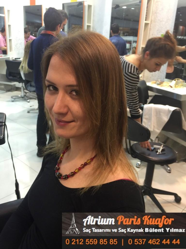 saç kaynak öncesi ve sonrası 200