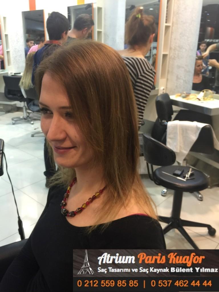 saç kaynak öncesi ve sonrası 201