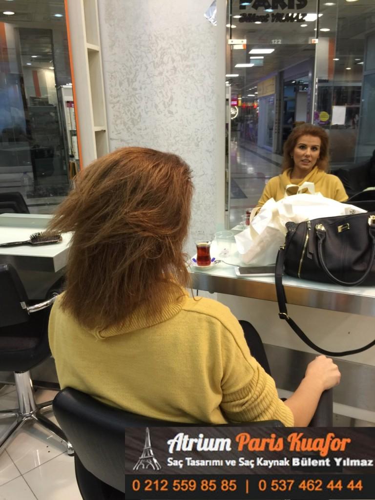 saç kaynak öncesi ve sonrası 210