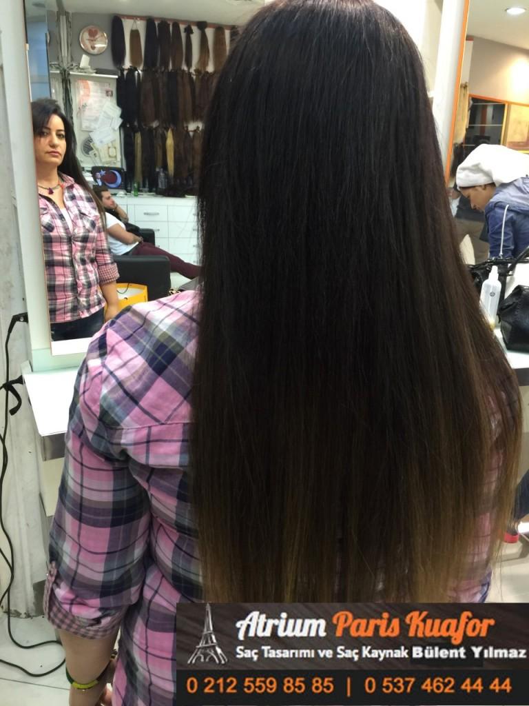 saç kaynak öncesi ve sonrası 217