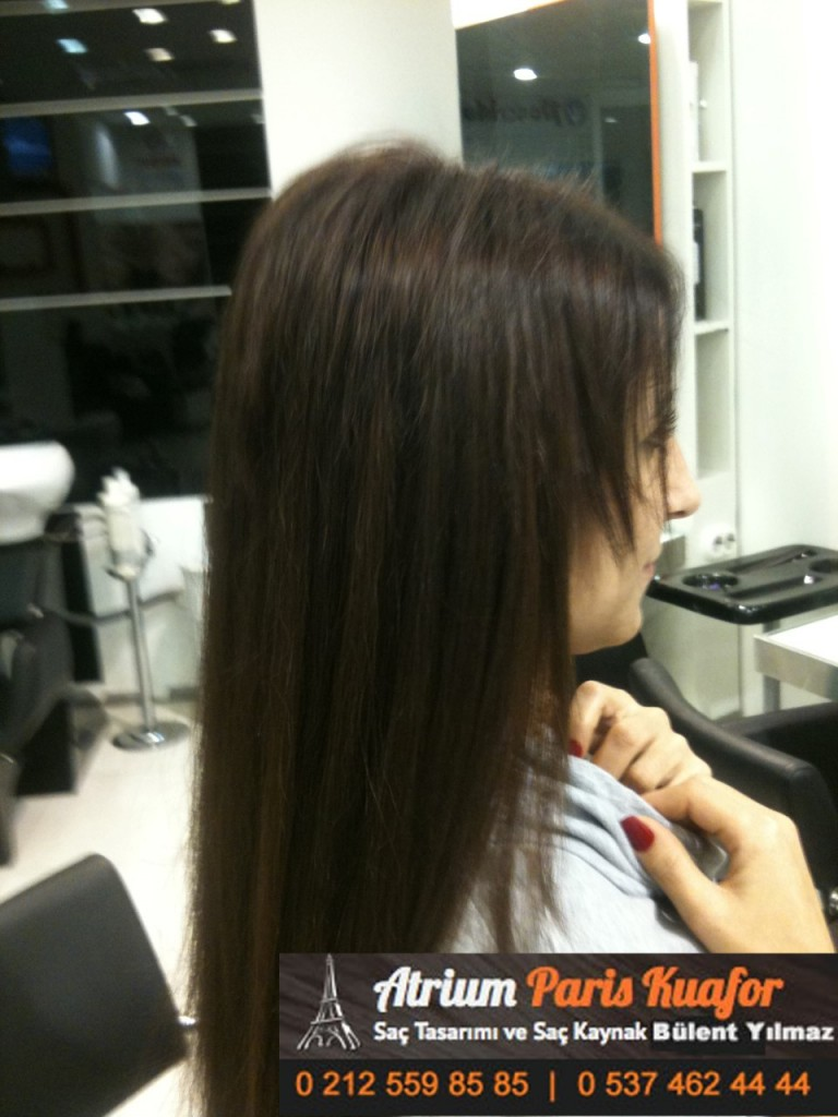 saç kaynak öncesi ve sonrası 238