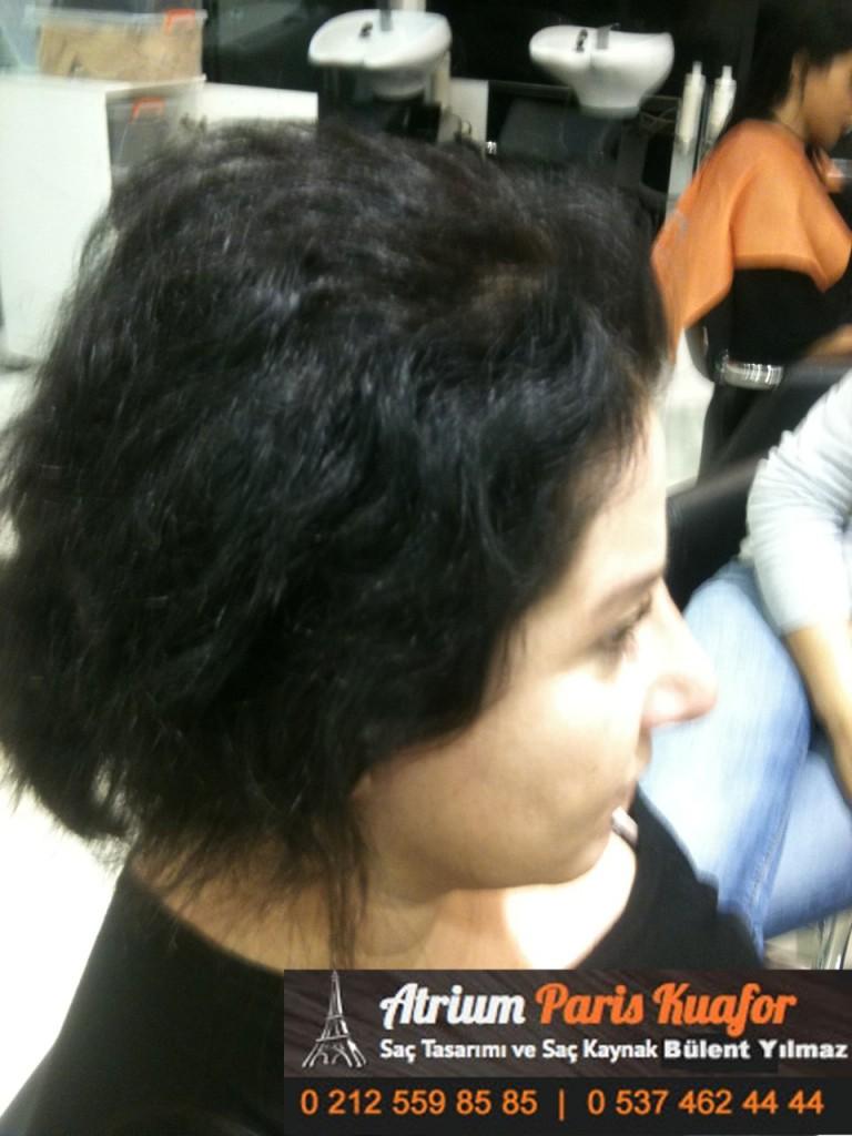 saç kaynak öncesi ve sonrası 240