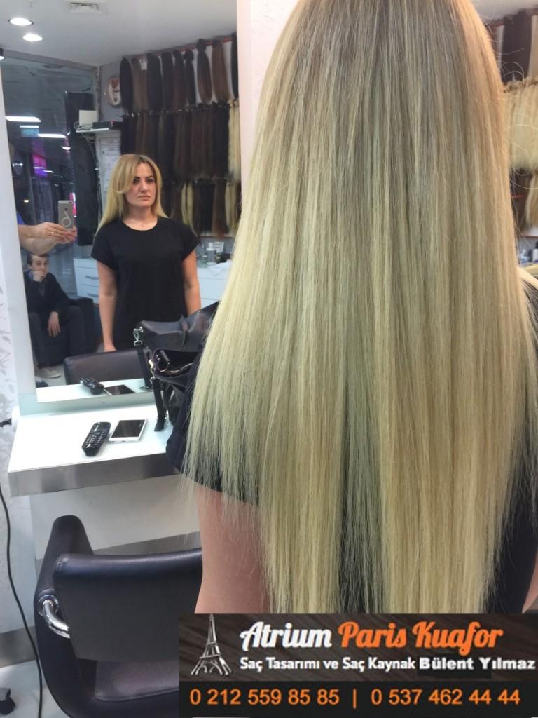 saç kaynak öncesi ve sonrası 250
