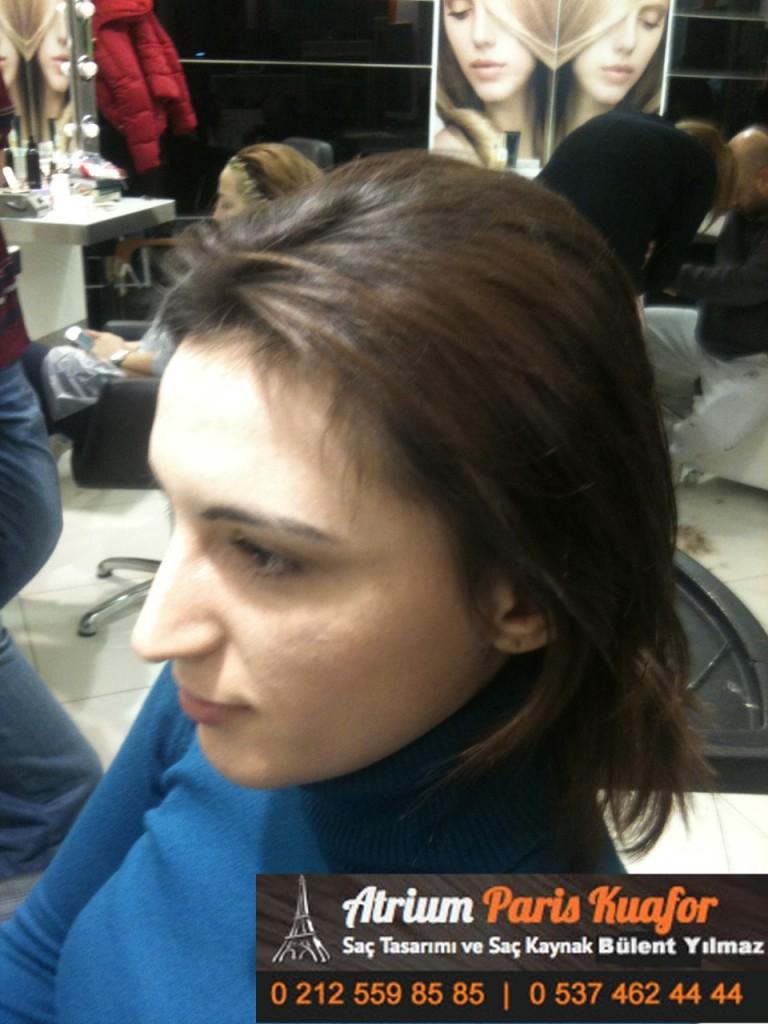 saç kaynak öncesi ve sonrası 255