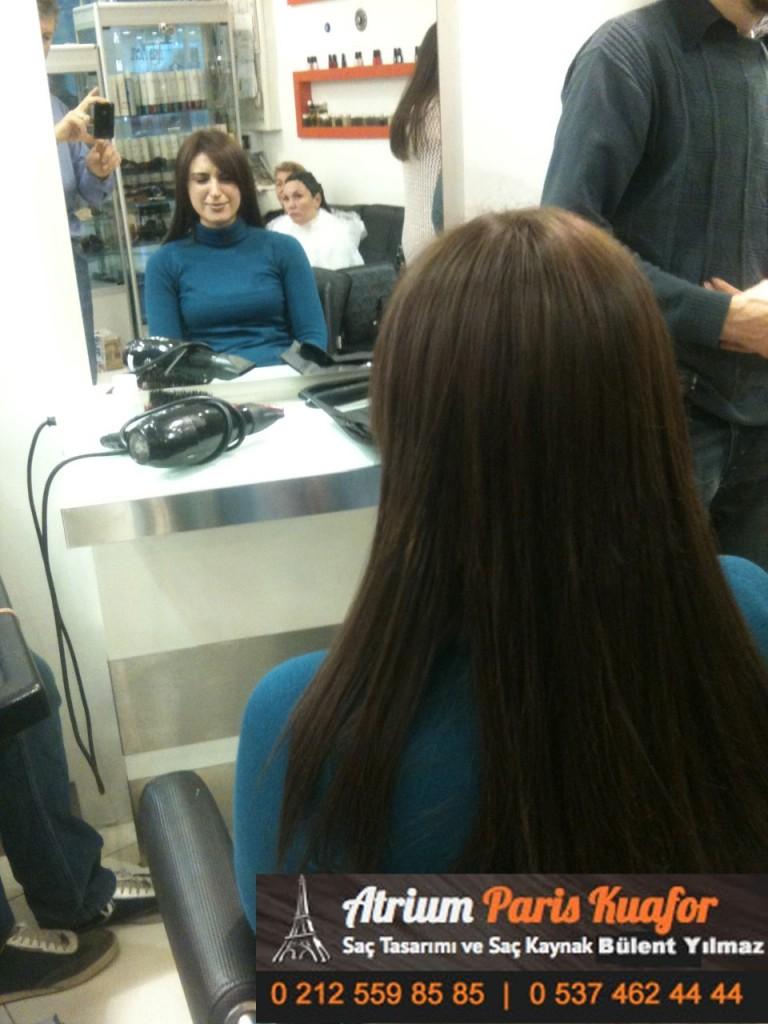 saç kaynak öncesi ve sonrası 256