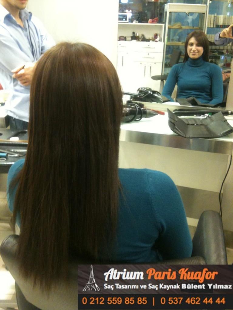 saç kaynak öncesi ve sonrası 257