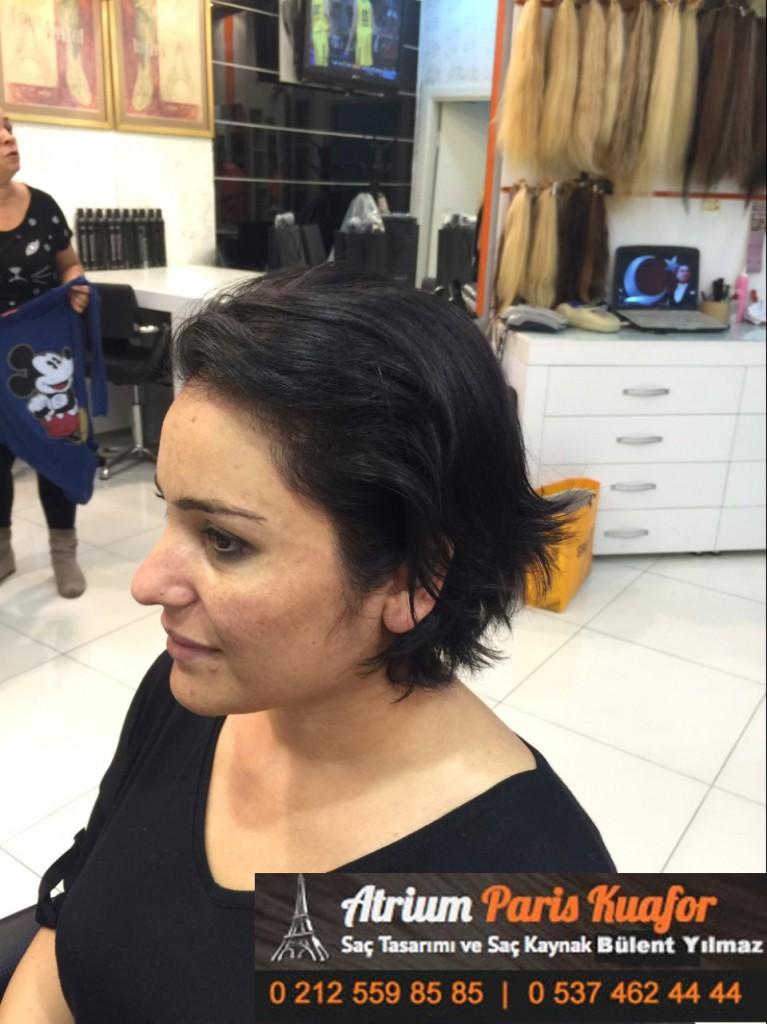 saç kaynak öncesi ve sonrası 265