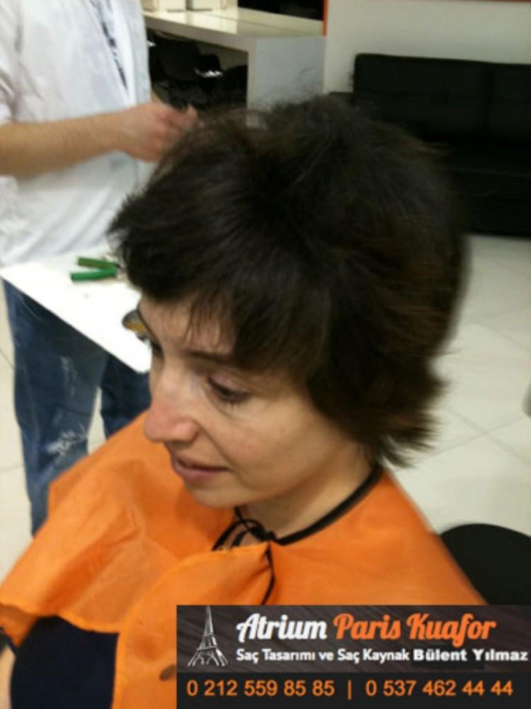 saç kaynak öncesi ve sonrası 296