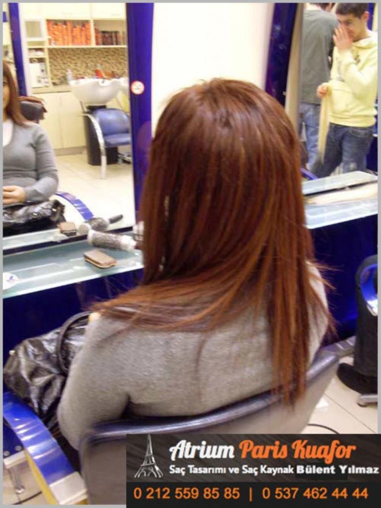 saç kaynak öncesi ve sonrası 302