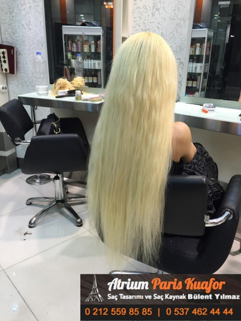 saç kaynak öncesi ve sonrası 308