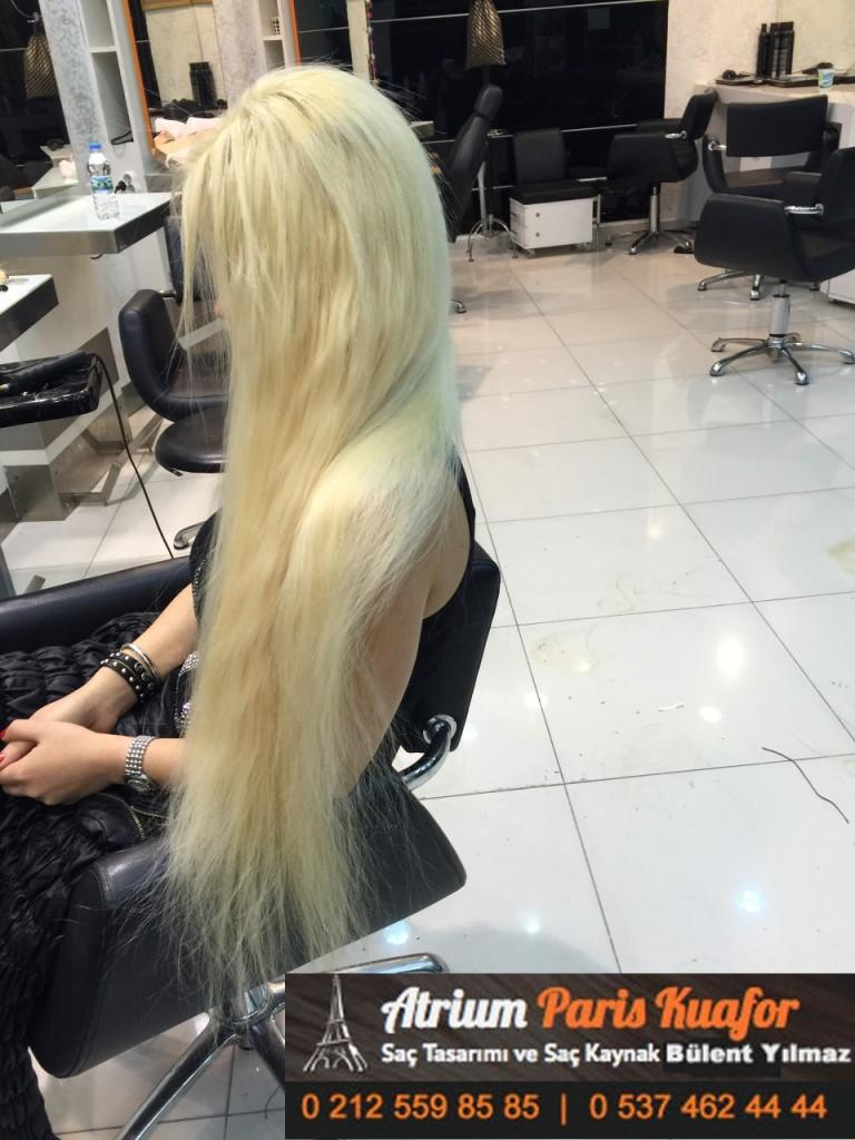 saç kaynak öncesi ve sonrası 309