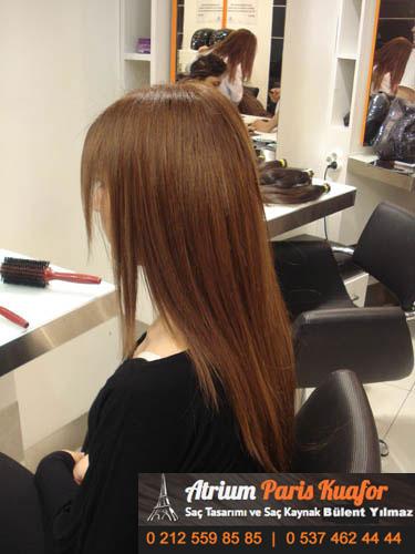 saç kaynak öncesi ve sonrası 31