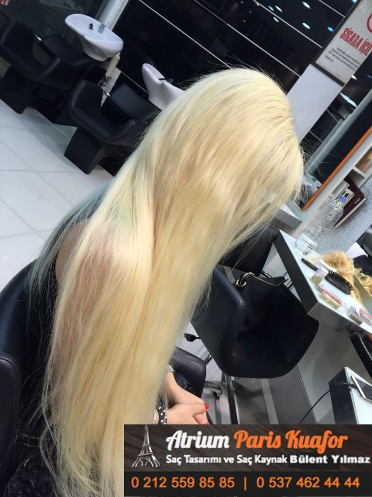 saç kaynak öncesi ve sonrası 310