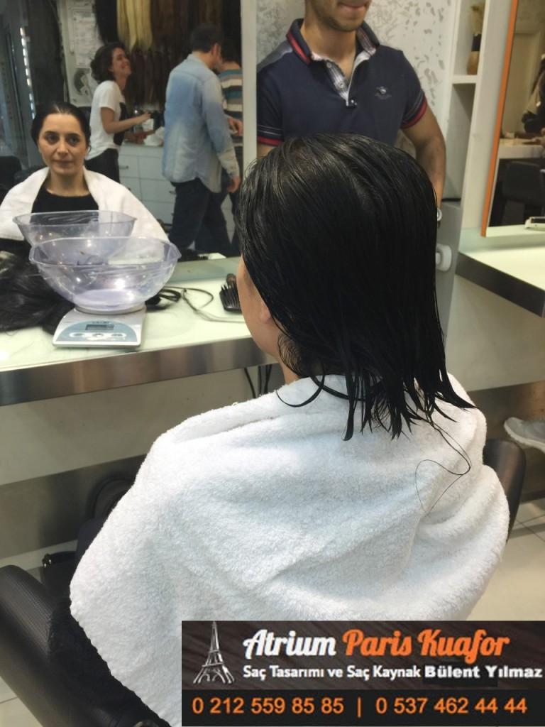 saç kaynak öncesi ve sonrası 312