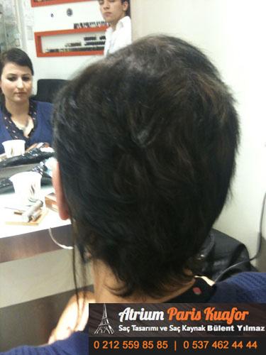 saç kaynak öncesi ve sonrası 32