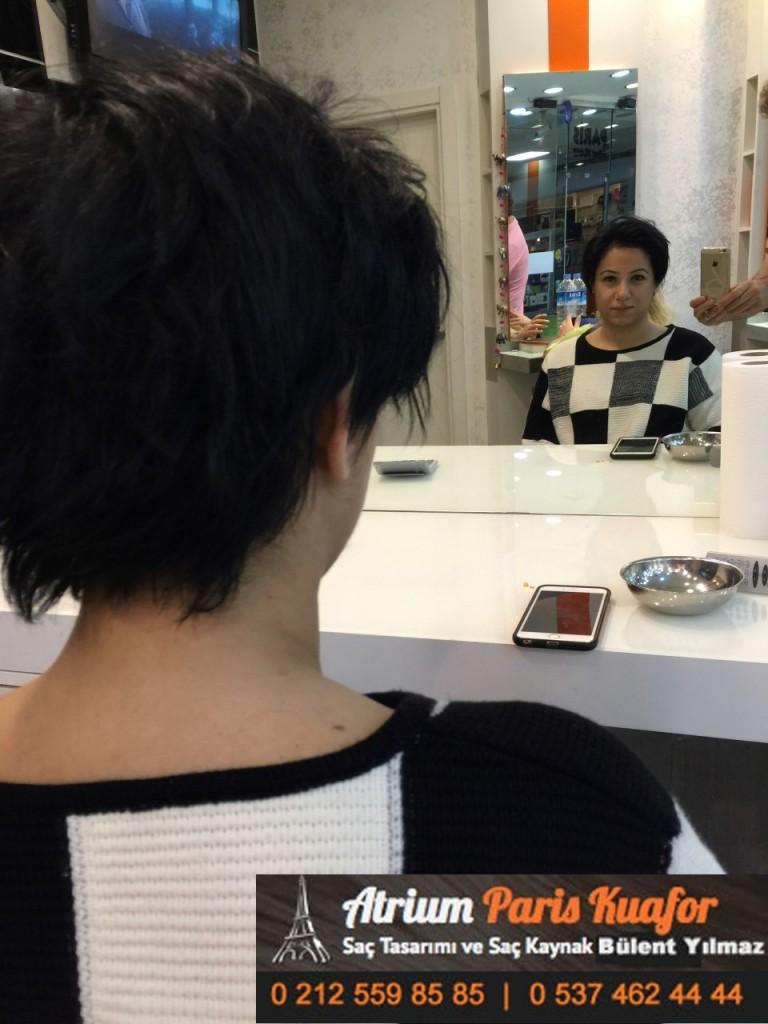 saç kaynak öncesi ve sonrası 322