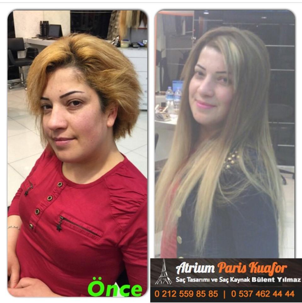 saç kaynak öncesi ve sonrası 337