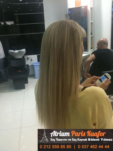 saç kaynak öncesi ve sonrası 34