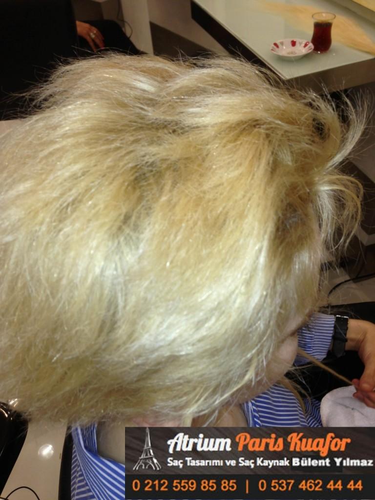 saç kaynak öncesi ve sonrası 341