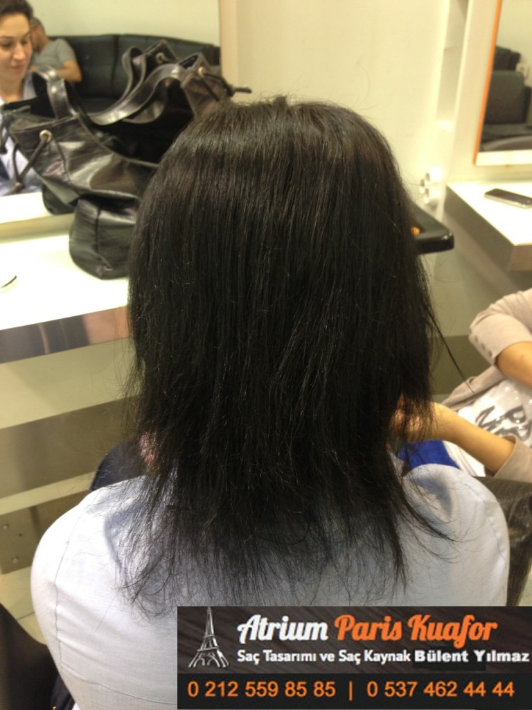 saç kaynak öncesi ve sonrası 356