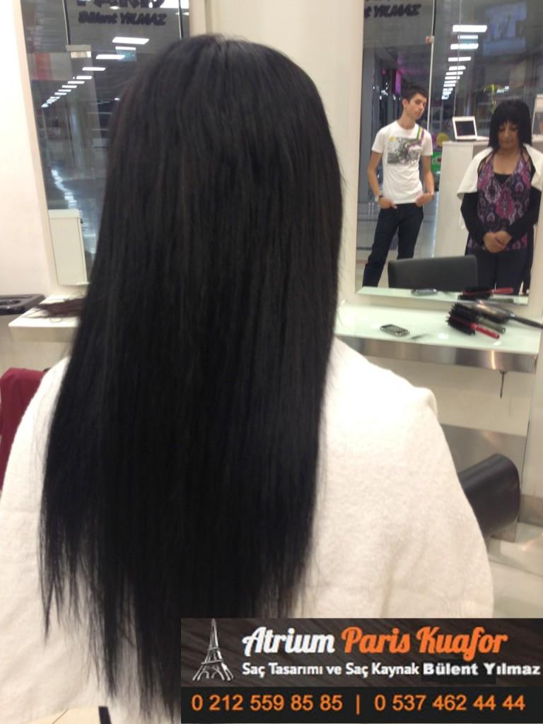 saç kaynak öncesi ve sonrası 367
