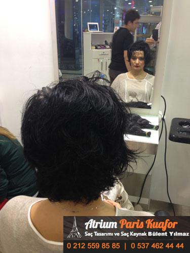 saç kaynak öncesi ve sonrası 37