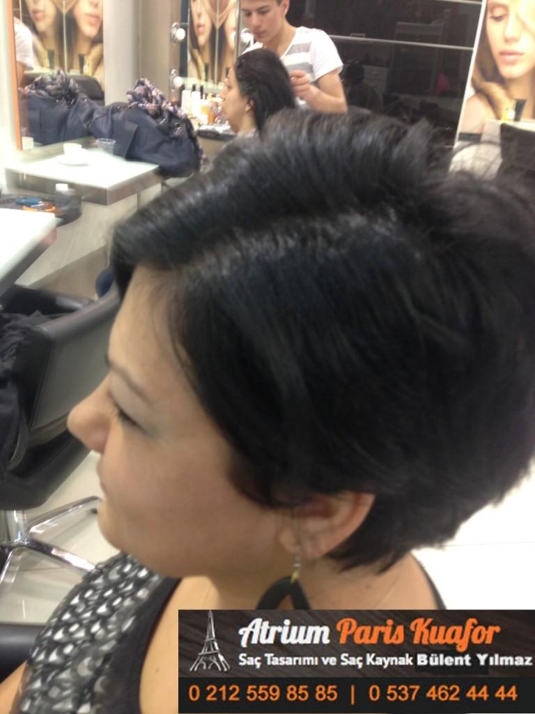 saç kaynak öncesi ve sonrası 372