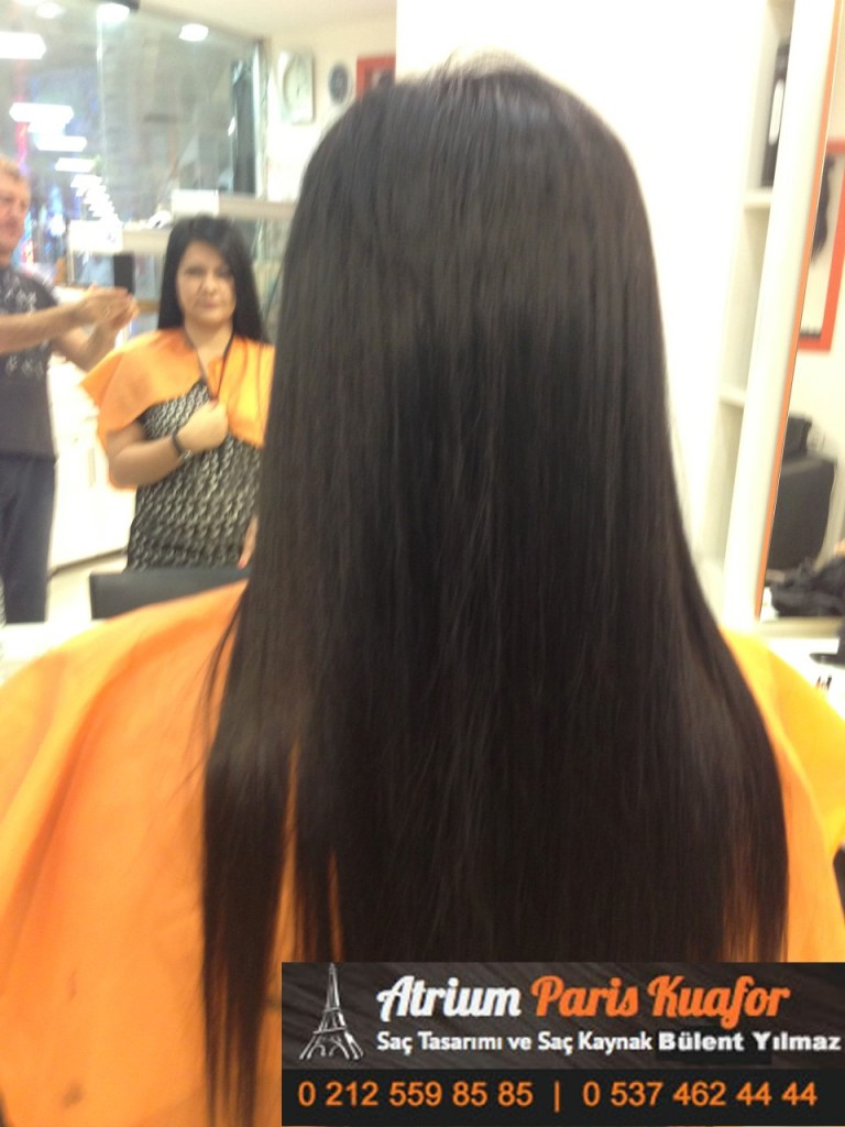 saç kaynak öncesi ve sonrası 374