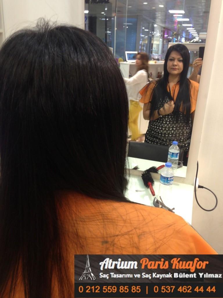 saç kaynak öncesi ve sonrası 375