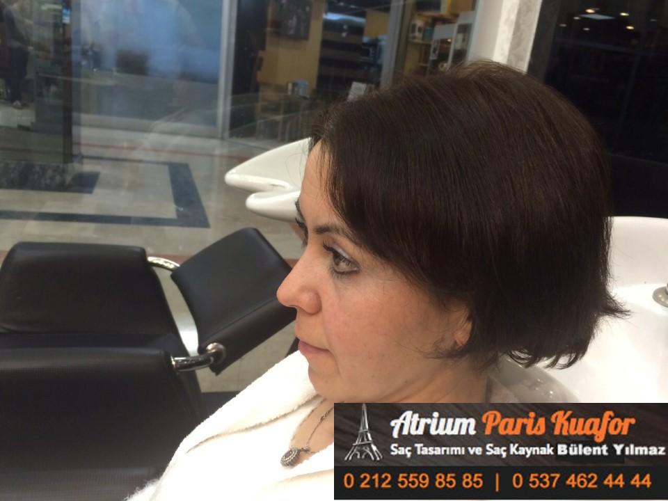 saç kaynak öncesi ve sonrası 377