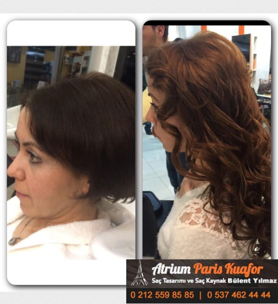 saç kaynak öncesi ve sonrası 380