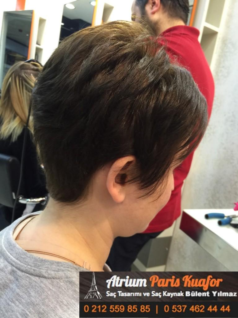 saç kaynak öncesi ve sonrası 382