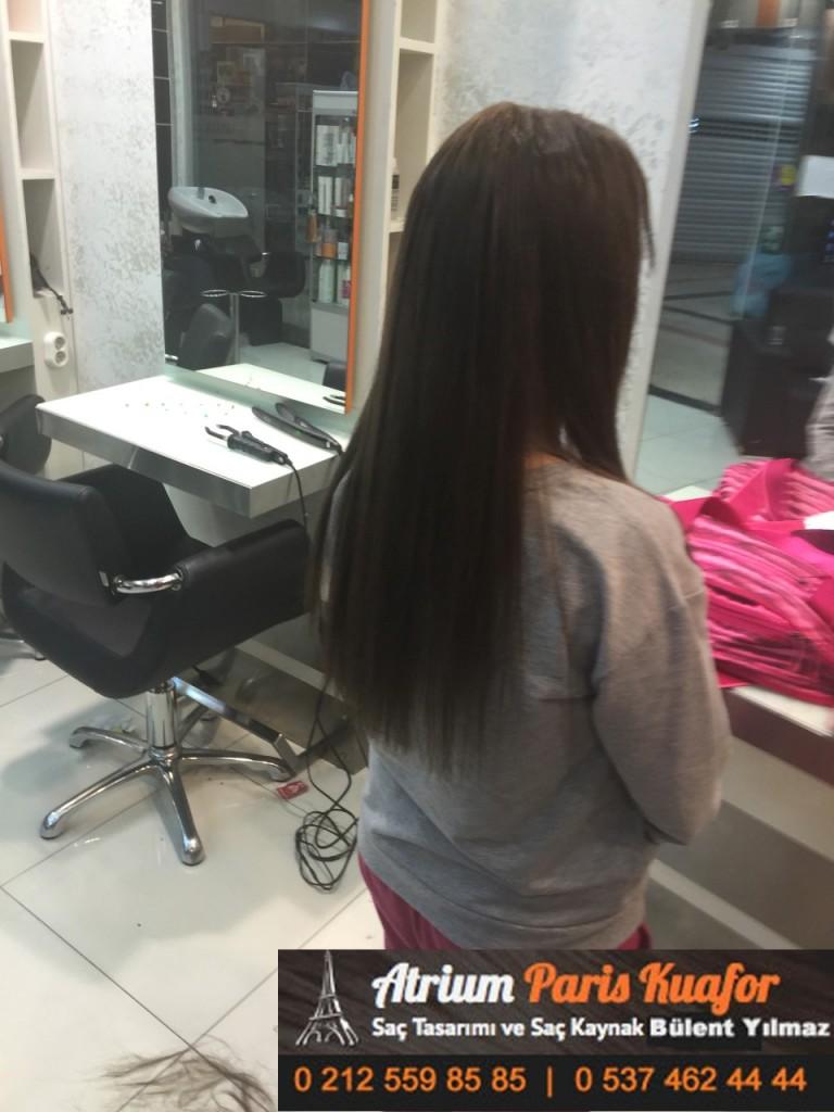 saç kaynak öncesi ve sonrası 383