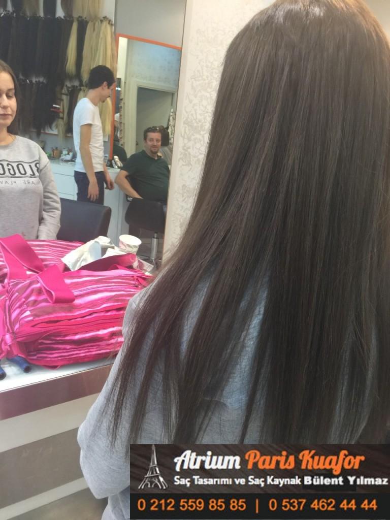 saç kaynak öncesi ve sonrası 384