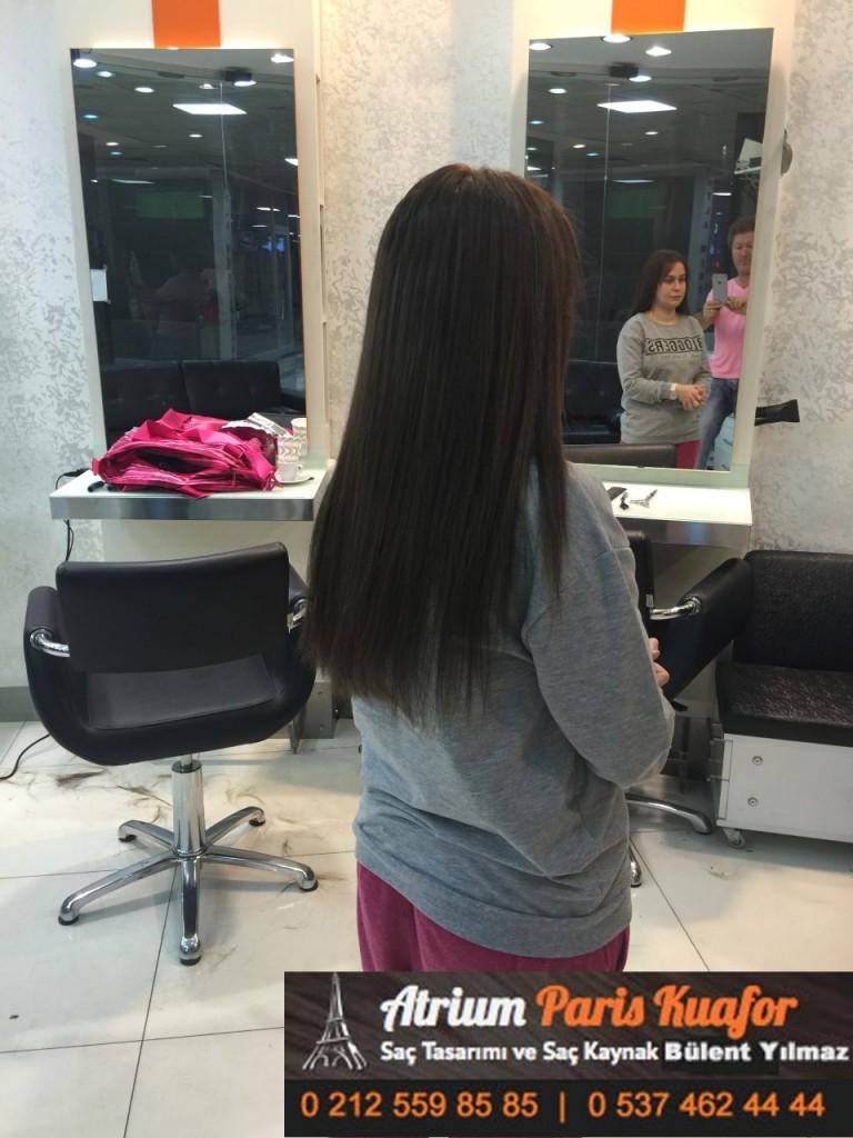 saç kaynak öncesi ve sonrası 385