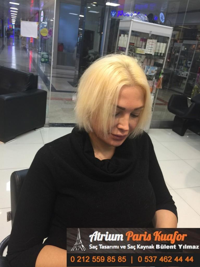 saç kaynak öncesi ve sonrası 387