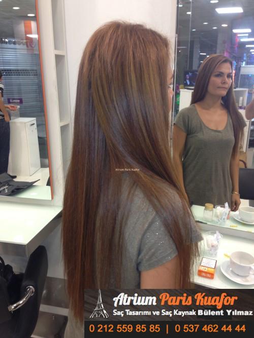 saç kaynak öncesi ve sonrası 4