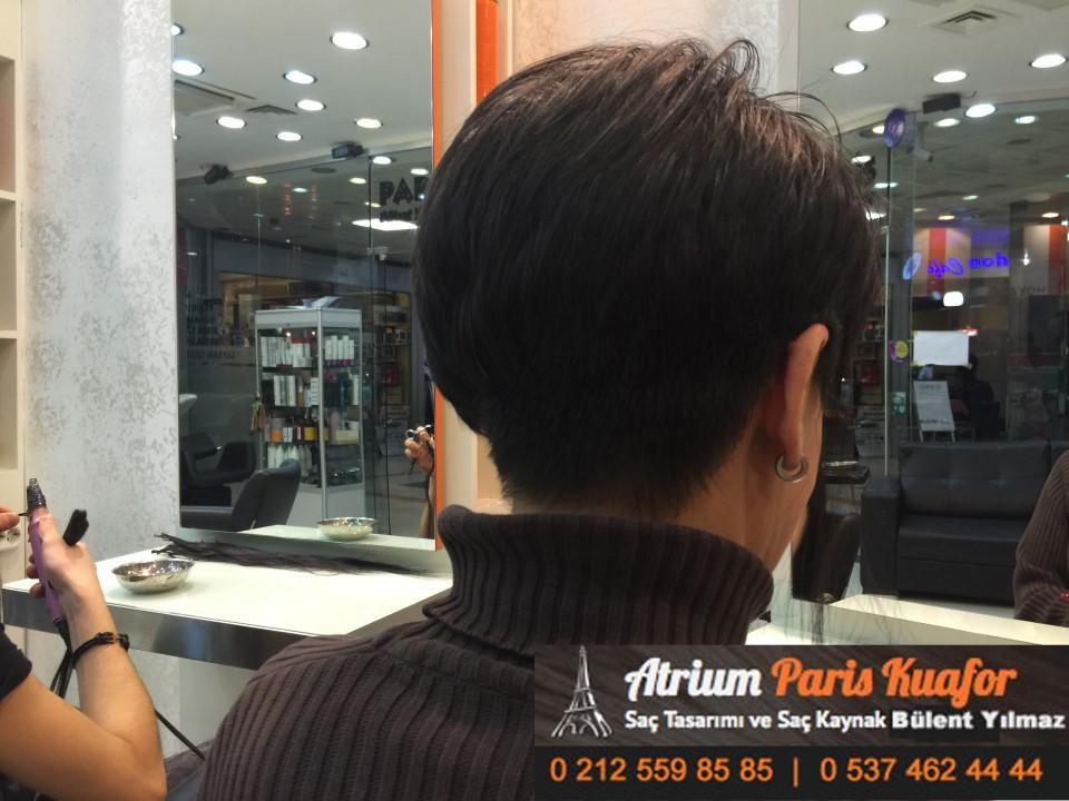 saç kaynak öncesi ve sonrası 402