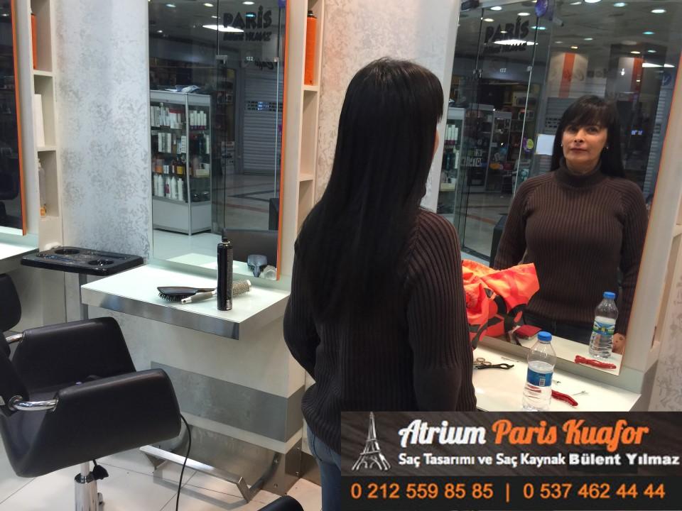 saç kaynak öncesi ve sonrası 403