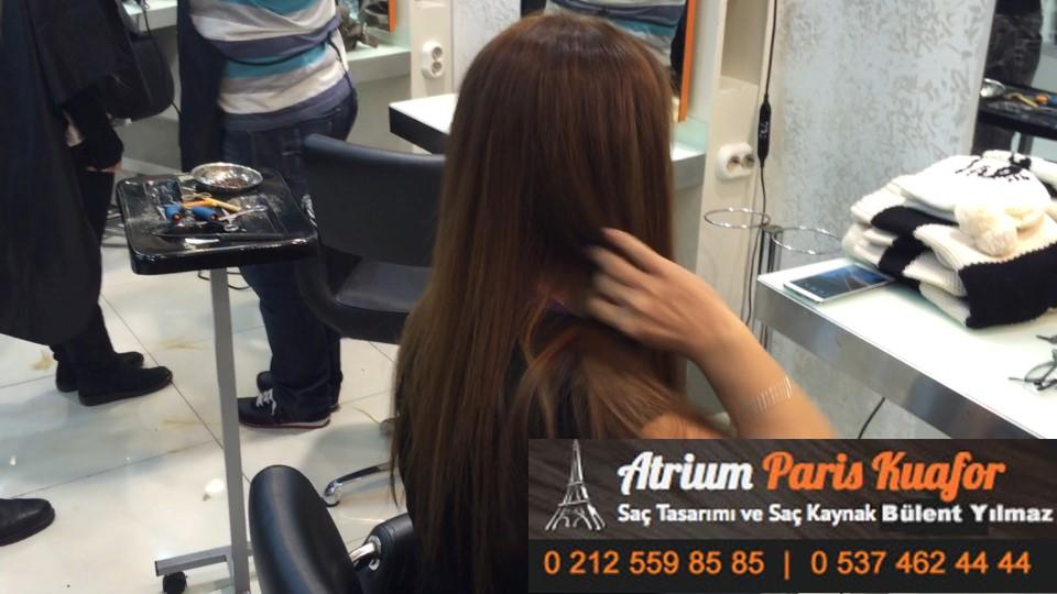 saç kaynak öncesi ve sonrası 407