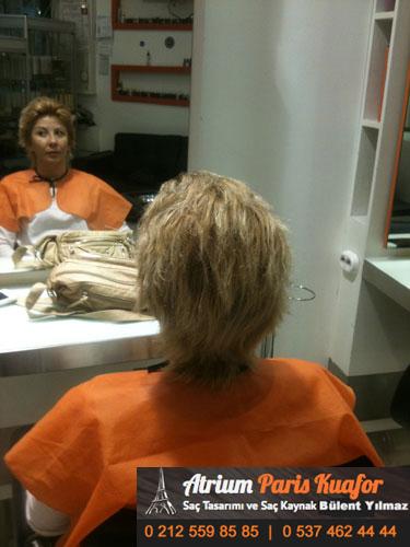 saç kaynak öncesi ve sonrası 46