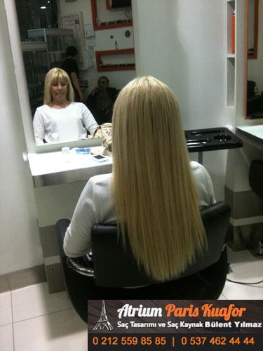 saç kaynak öncesi ve sonrası 47