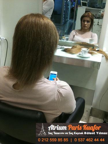 saç kaynak öncesi ve sonrası 48